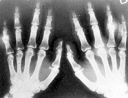 Reumatoidinio artrito simptomai: delsti negalima - Move&Flex